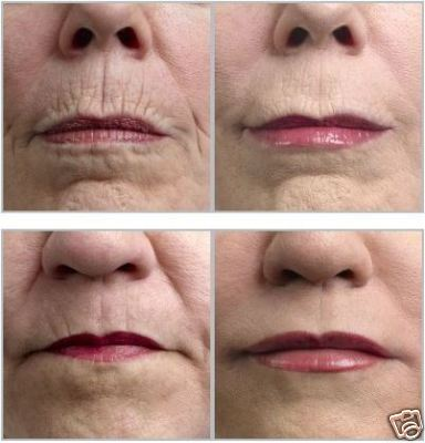 Laser Surgery: Cosmetic Laser Surgery For Tazorac For ...