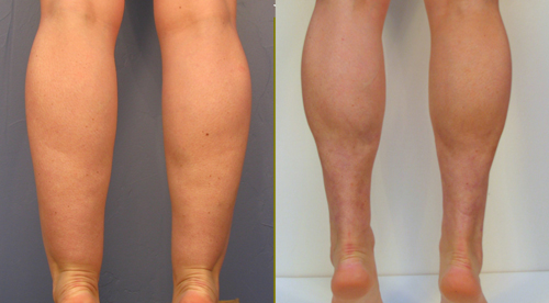 Ankle Liposuction Before and After