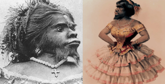 Julia Pastrana - Mexican Ape Women Buried 150 Years after Death 1 Behind History