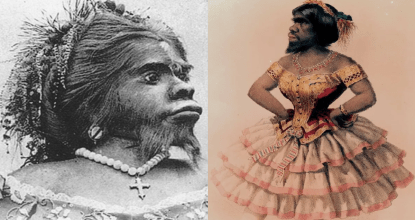 Julia Pastrana - Mexican Ape Women Buried 150 Years after Death 21 Behind History