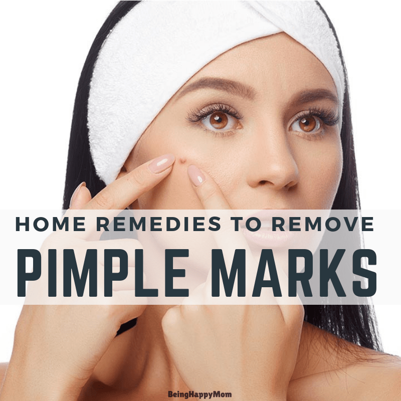 13 Home Remedies To Remove Pimple Marks Naturally for Oily Skin