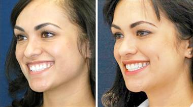 Creating Artificial Dimples