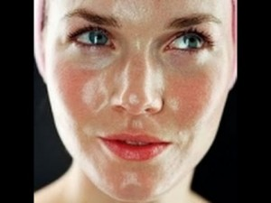 peau grasse visage