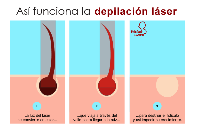 Como funciona la depilacion laser