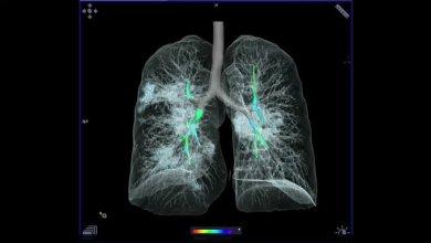 صورة ما تكشف عنه الأشعة السينية والأشعة المقطعية حول كيفية قتل فايروس كورونا