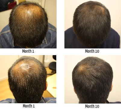 Hair Loss Cure Hi Ossy It Sounds Like You Been Through A Stressful Time But There S No Need To Move An Island On Account Of Your