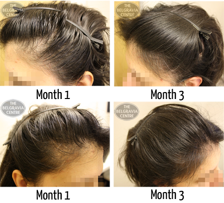 "Hair Growth Success ""great Service!"""