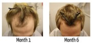 receding hairline 2013 hairstyle