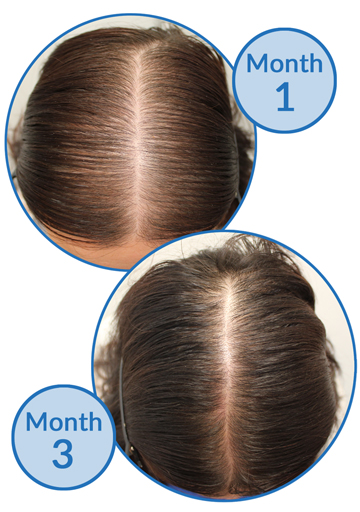 Belgravia Centre Success Story - female pattern hair loss treatment and telogen effluvium hair growth before and after