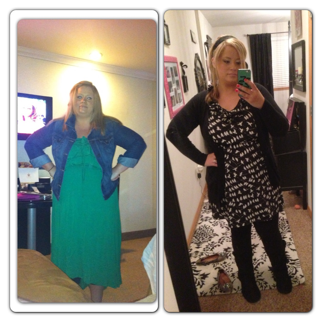 erika before and after lap band to sleeve revision weight loss surgery