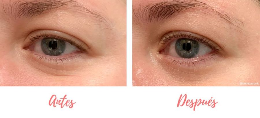 review Heimish Bulgarian Rose Water Hydrogel Eye Patch 8