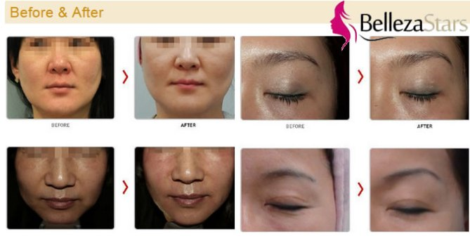Face Lifting HIFU Machine before and after