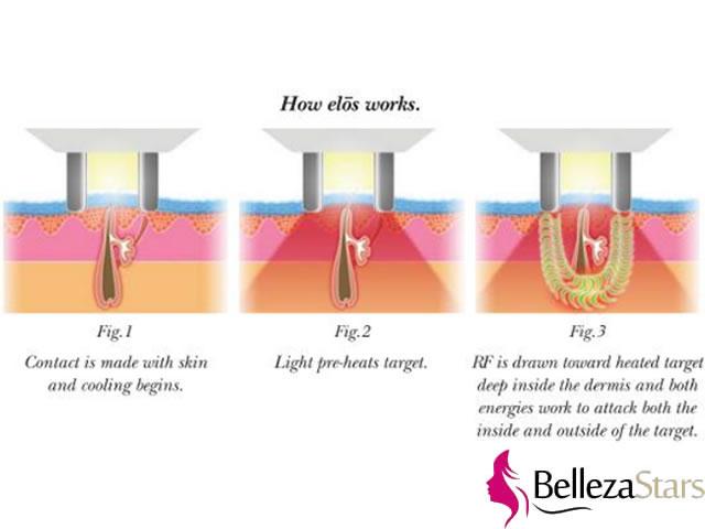 depiladora laser IPL RF 2-in-1 beauty machine principle