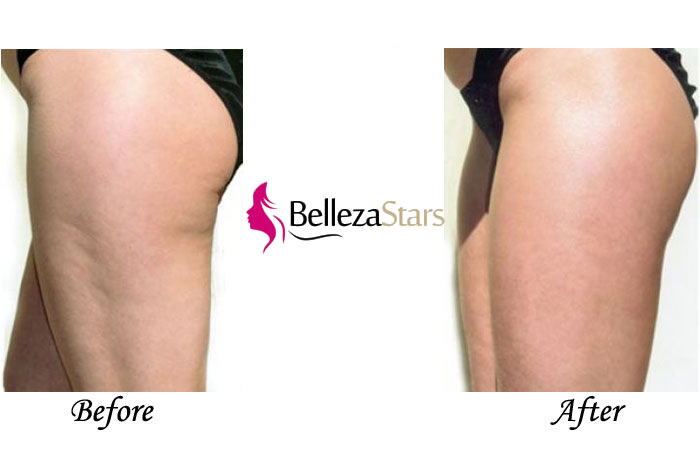 Ultrasound Cavitation Cellulite Treatment Body Contouring