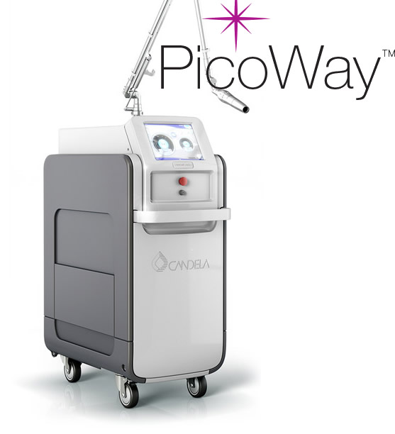 Picoway Laser Tattoo Removal