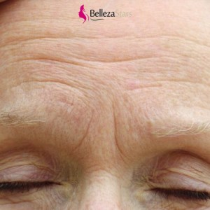 Attention Details to Prevent Premature Wrinkles Appearance