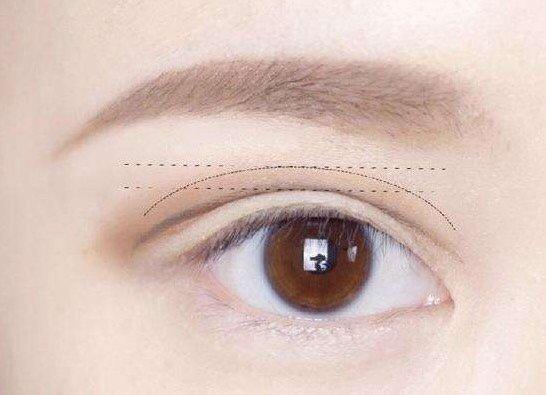 Cut double eyelid postoperative care