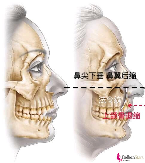 The loss of the maxilla is relatively serious