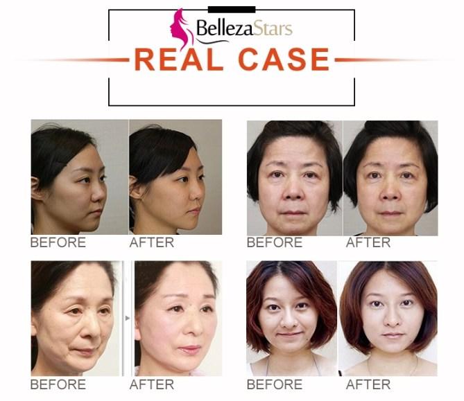 HIFU Beauty Salon Machine Applications
