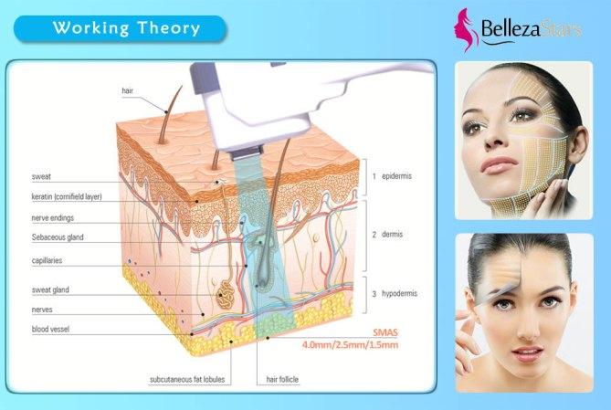 SMAS RF Multifunctional Beauty Equipment Working Theory