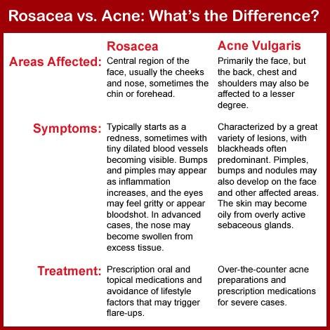 Rosacea vs. acne: Differences in symptoms, causes, and ...