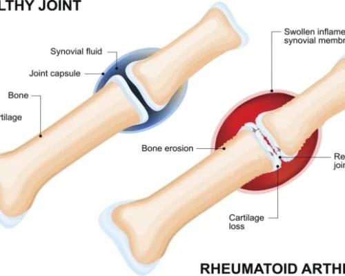 Rheumatoid arthritis. inflammatory joint disease patients at higher risk for cardiovascular disease