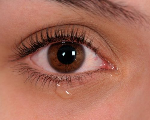 Common Causes Of Burning Eyes Symptoms And Treatment Tips