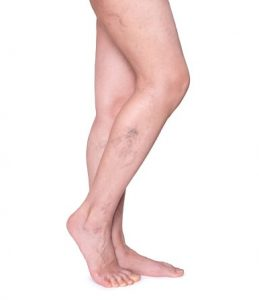 Poor Circulation in Legs: Causes Symptoms and Treatment