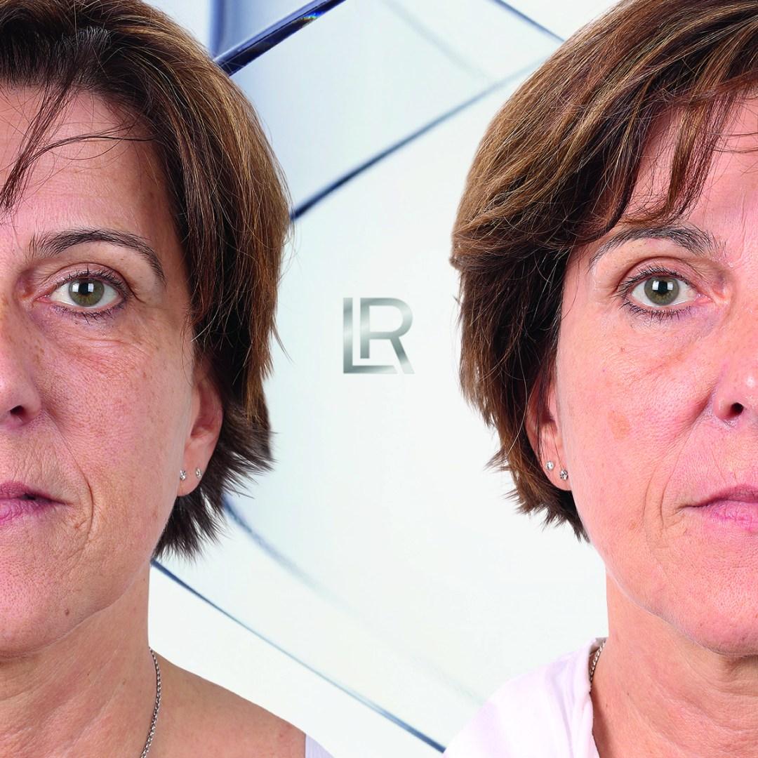 Effect Serox Masker Manuela