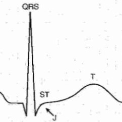 Wiggers Diagram Tutorial River Meander Labeled Artery ~ Elsavadorla