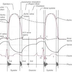 Heart Sounds Diagram Wiring For A 7 Pin Trailer Plug Electrocardiograph (ecg,ekg) Interpretaion