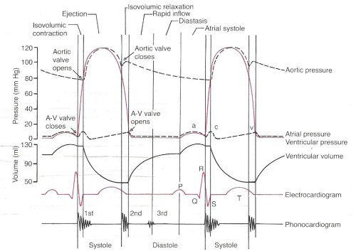 small resolution of ventricular cycle