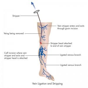 Stripping Vena Safena