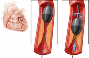 angioplastia, Angioplastia si implantul de stent – tot ce trebuie sa stiti