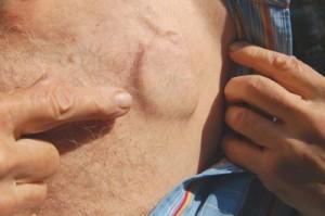 Implantare stimulator cardiac permanent   parohiagheraesti.ro