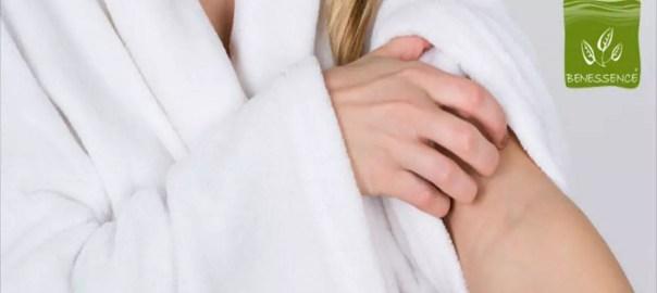 Succo e gel di Aloe Vera per alleviare i sintomi dell'eczema