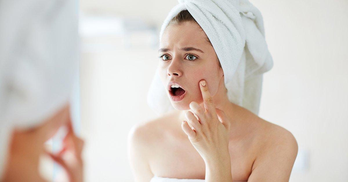 acne-aloe