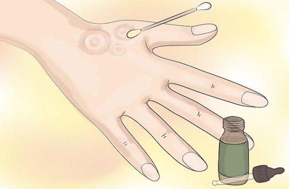Utilizzo del Tea Tree Oil