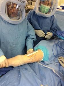 minimally invasive knee replacement