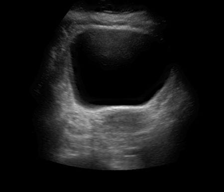 ecografia vescica e utero ovaie