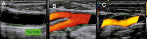 ecocolordoppler carotidi TSA Sabino Berardino