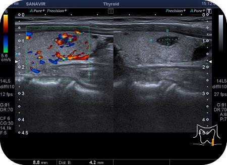 nodulo tiroideo ecografia