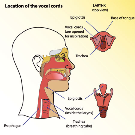 Treatment of Vocal Cord Paralysis  Paresis