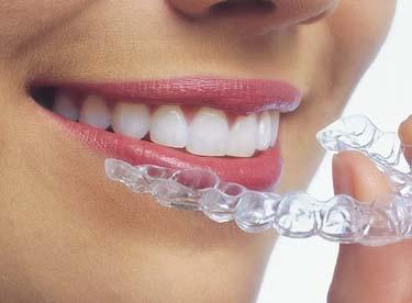 Berkeley Dentist - Family & Cosmetic Dentistry   Berkeley ...