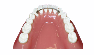 Retainer Wear and Care