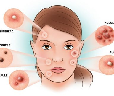 Treatment of acne