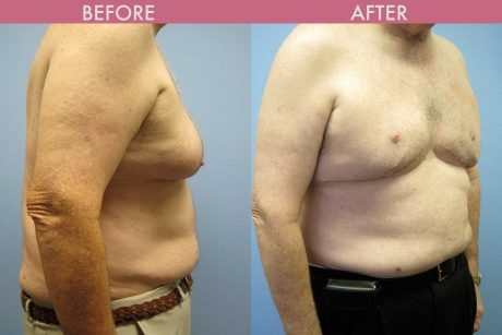 Gynecomastia  Berman Cosmetic Surgery