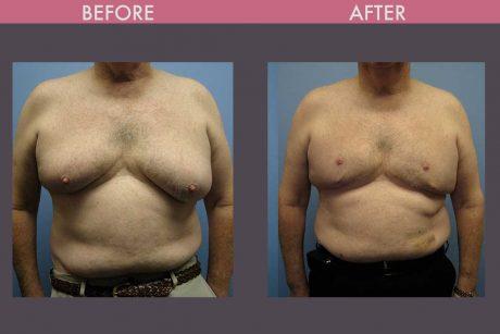 Gynecomastia Berman Cosmetic Surgery
