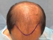 hair transplant patient