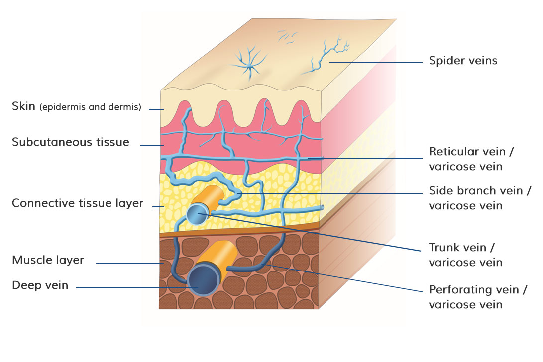 hight resolution of overview of the positions of the different types of varicose veins in and under the skin